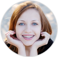 Orthodontics for Teens