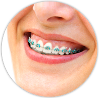 What are Self-Ligating Braces?